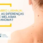 Quais as diferenças entre melasma e melanoma?